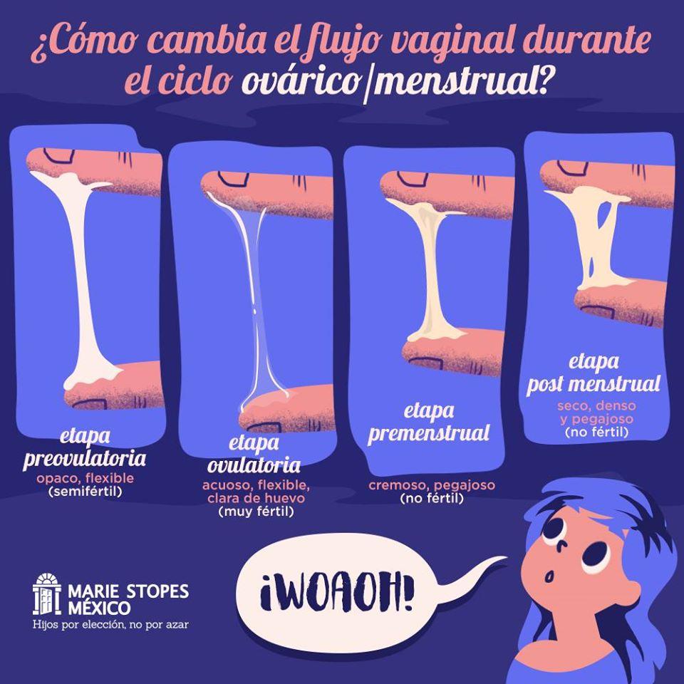 Flujo vaginal como requesón