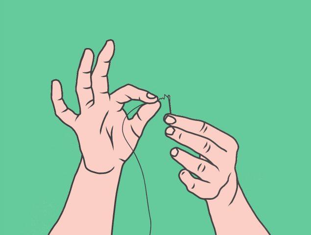 «Punto para el marido» estrechar la vagina con sutura.